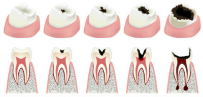 General Dentistry | Angel Smiles Dental | Crown Point, IN